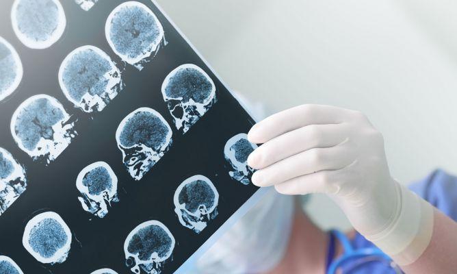 Epilepsia: causas, tratamiento y cómo actuar ante una crisis epiléptica.